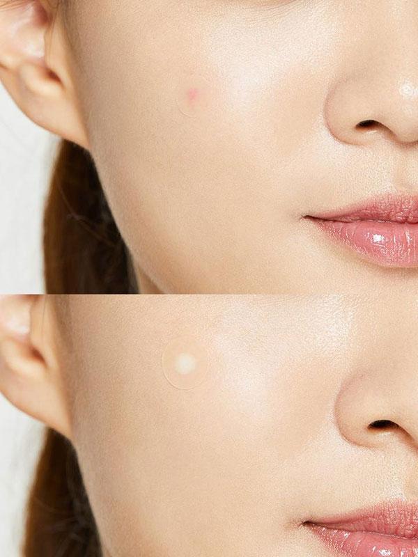 COSRX Acne Pimple Master Patch tapazok
